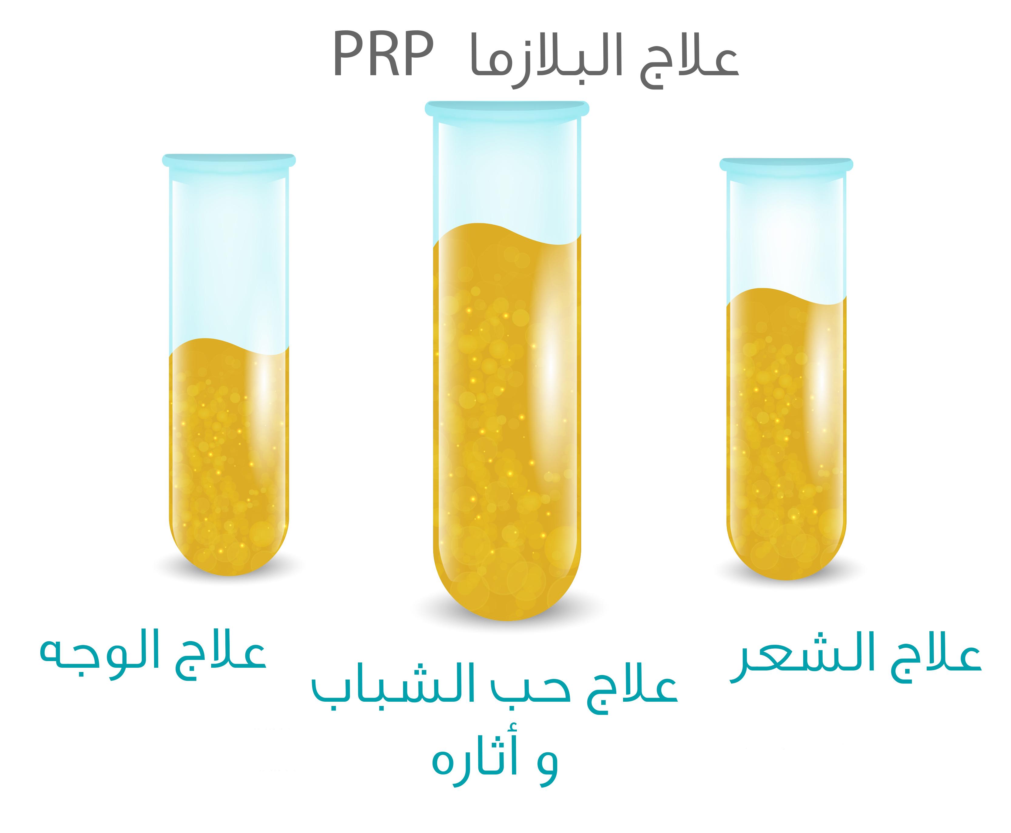بلازما الصفائح الدموية PRP